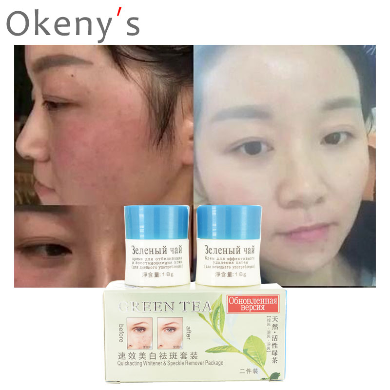 2pcs Strong Effects Powerful Whitening Freckle Cream Remove Melasma Acne Spots Pigment Melanin Whitening Moisturizing Skin Care