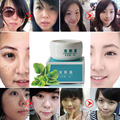 Authentic Original hidratar reparação de clareamento desvanece Spot creme Facial eliminar melanina, O tratamento de purificação de cuidado Facial Freckle