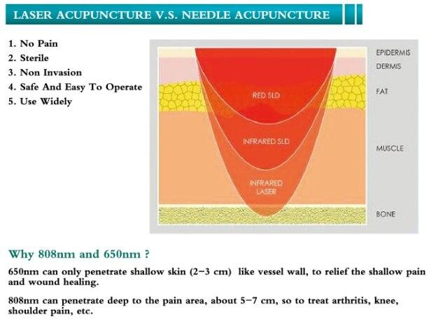 Без иглы медицинские био лазерной акупунктуры боли в спине ослабитель инструмент