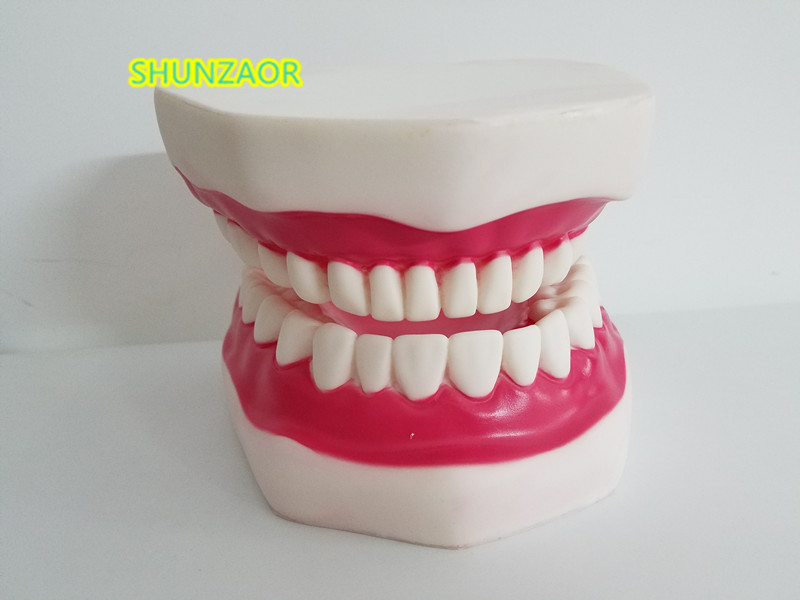 Denture Teeth Dental ModelsDental Implant Disease Model with Restoration Bridge Tooth Dentist for Medical Science 2016 dental orthodontics typodont teeth model half metal half ceramic brace typodont with arch wire