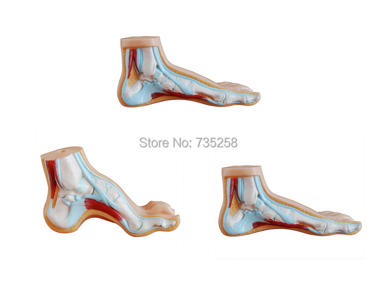 Normal Foot,Flat feet,Bow foot,Foot Combined Anatomical Model normal foot flat feet bow foot foot combined anatomical model