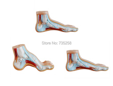 Normal Foot,Flat feet,Bow foot,Foot Combined Anatomical Model
