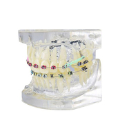 1 Pcs Dental Study Transparent Teeth Model Standard or Malocclusion Orthodontic Model Brace Brackets Typodont