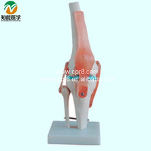 Vivid Life-Size Artificial Knee Joint Model BIX-A1019 WBW243
