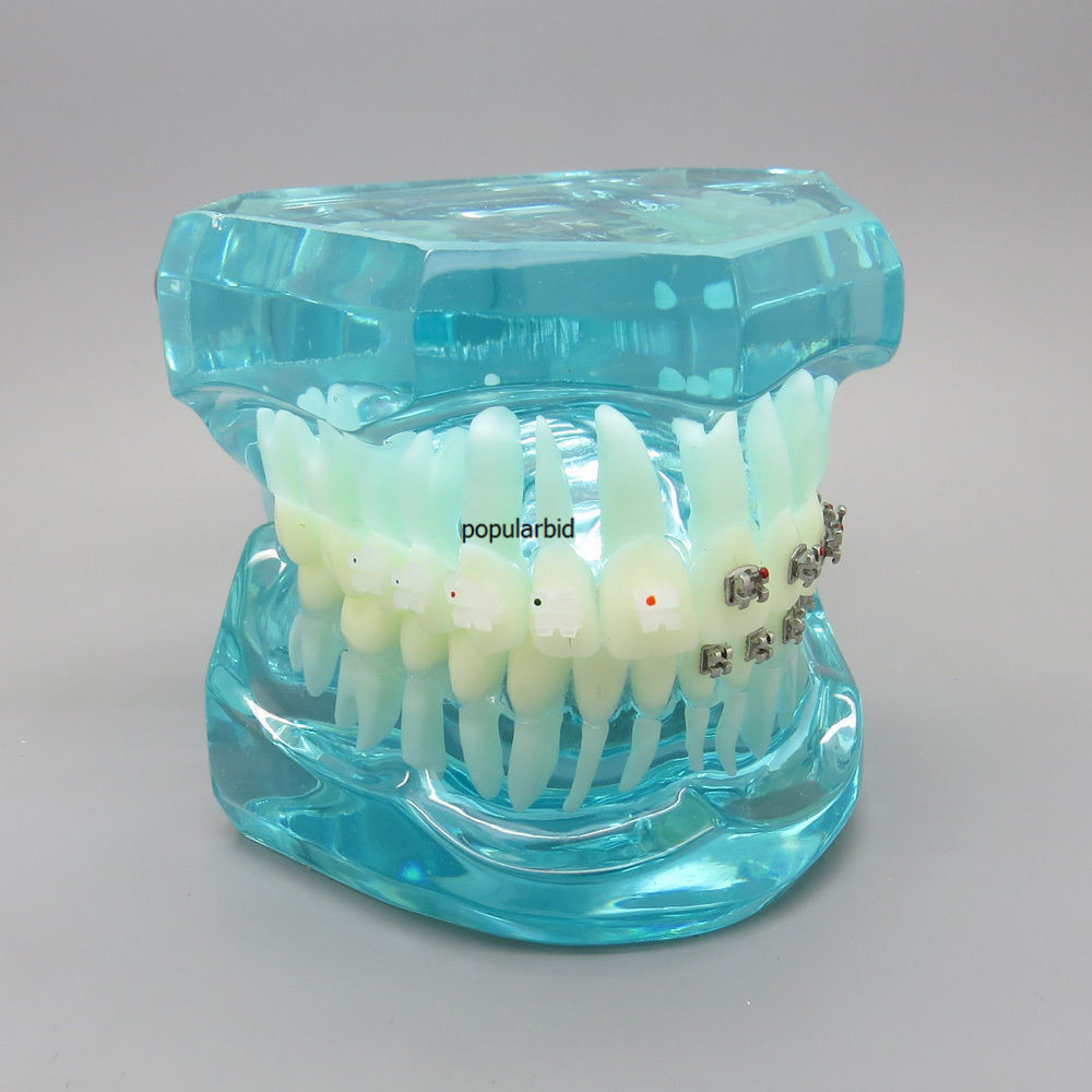 BLUE Dental Orthodontics 4 Types of Brackets Communication Model Dentist Patient Communication Teeth Model цена