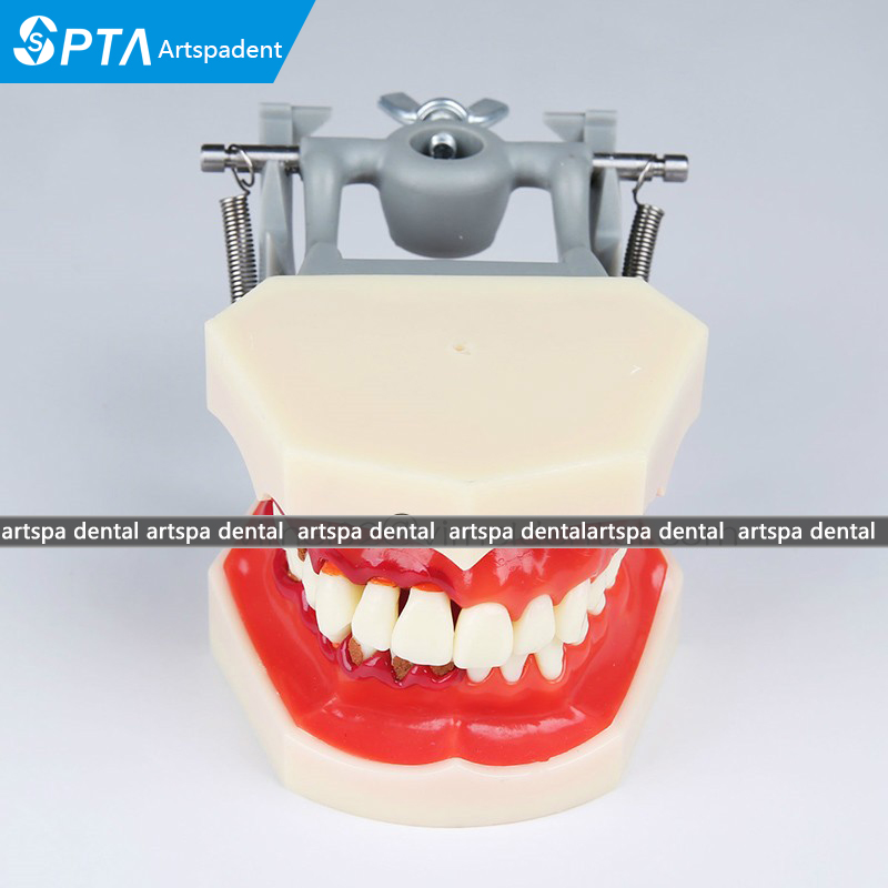 teeth Model Dental Periodontal Disease Practice Dental Model With tartar teeth model blue dental orthodontics communication model with 4 types of brackets