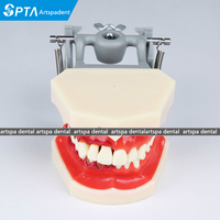 teeth Model Dental Periodontal Disease Practice Dental Model With tartar
