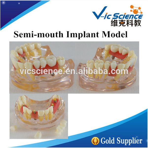 Implant Demonstration Model/Implant Demonstration/Implant Model attachments retaining implant overdentures