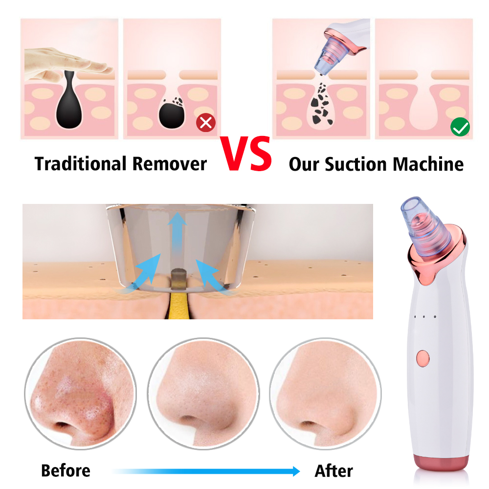 Appliance - Blackhead Remover Vacuum Pore Cleaner Electric Nose Face Deep Cleansing Skin Care Machine