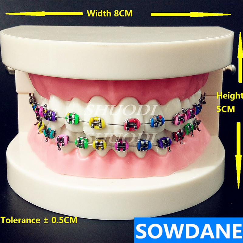 Dental Orthodontic Treatment Model With Ortho Metal Bracket Arch Wire Buccal Tube Ligature Ties