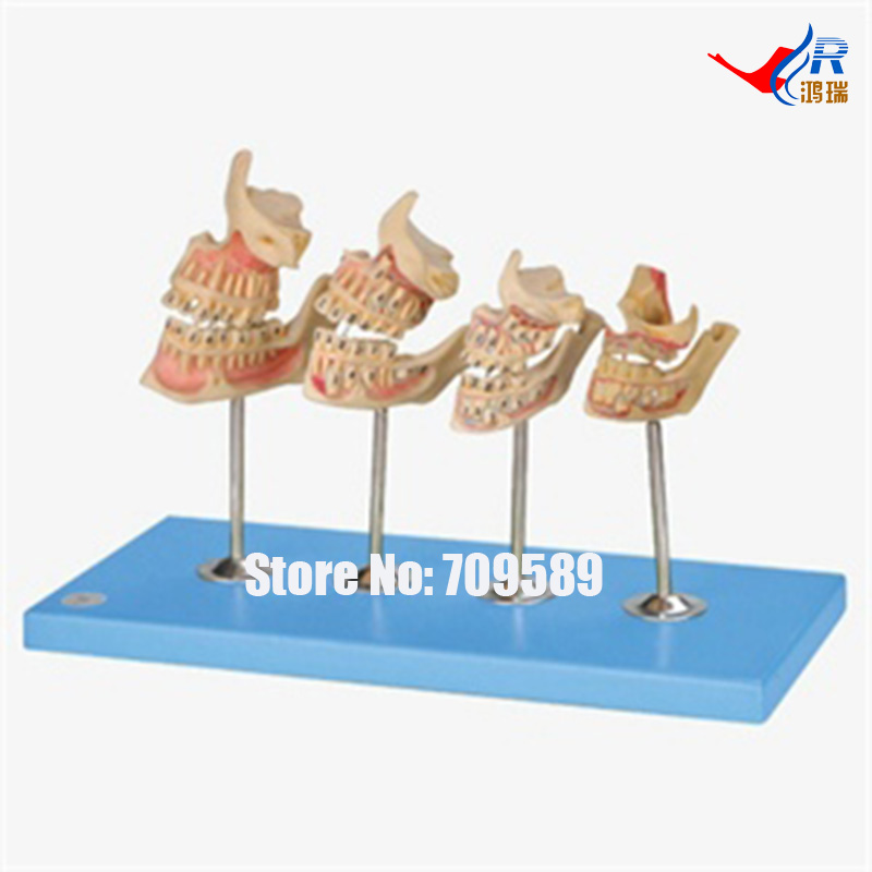 Development of a set of Teeth, Dental Care Model female pelvic fetal model nine months of pregnancy fetus uterine embryo development model fetal development model gasen sz017