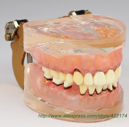 Periodontosis education model for study for teachingdental tooth teeth anatomical anatomy model dentist odontologia dh202 2 dentist education oral dental ortho metal and ceramic model china medical anatomical model