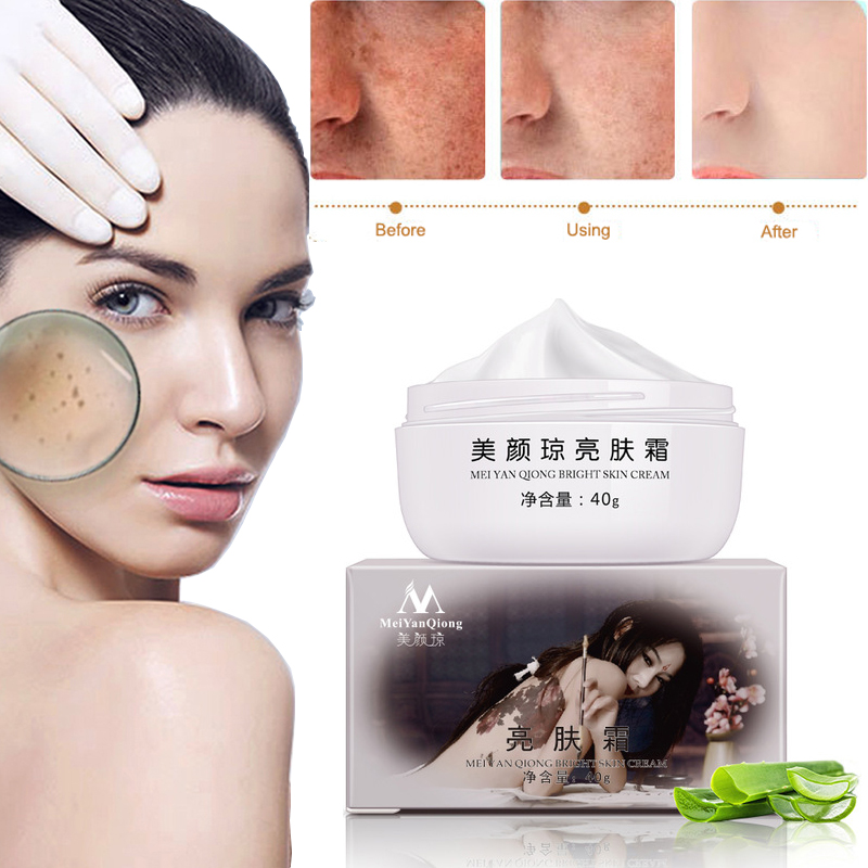 40g MeiYanQiong Powerful Whitening Freckle Cream Moisturizing Remove Acne Spots Pigment Melanin Dark Spots Skin Care Cream TSLM2