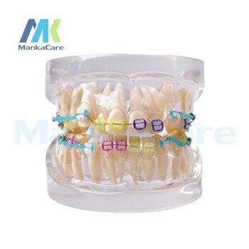 Manka Care -  24 pcs Tooth, all ceramic bracket Oral Model Teeth Tooth Model