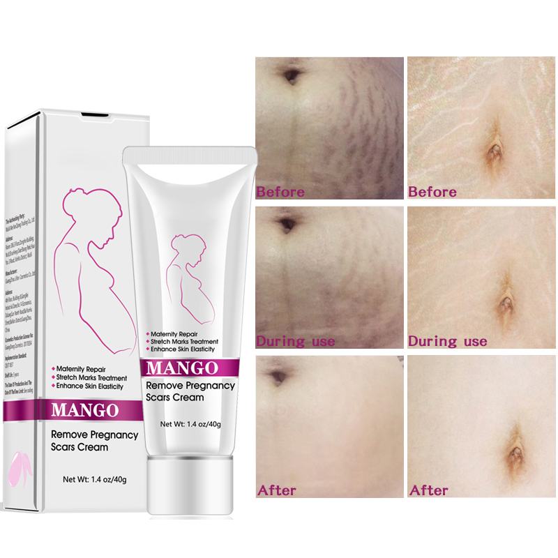 Mango Remove Pregnancy Scars Cream Stretch Marks And Scar Cream Best Body Moisturizer 40g Slimming Product Aliexpress