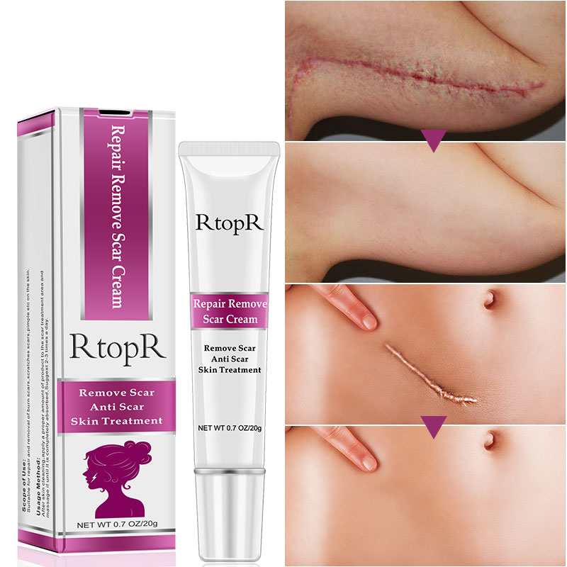 RtopR Acne Scar Stretch Marks Remover Cream Skin Repair Face Cream Acne Spots Acne Treatment Blackhead Whitening Cream Skin Care 2