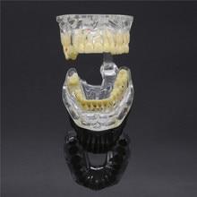 Зубной имплантат патологический выдавливание зубов отсутствующие Зубы Модель 1 шт