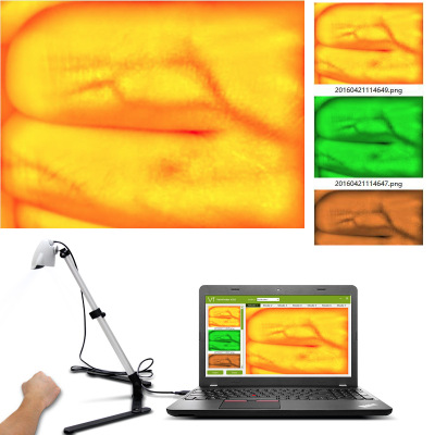 Новая версия Регулируемый монитор для просмотра Вены для взрослых и детей инфракрасные лампы USB камера Imaging IV медицинский прибор для поиска вены