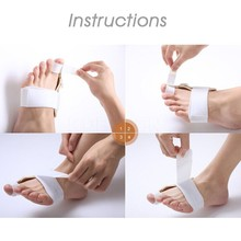 Hot Sale Bunion Device Corrector Hallux Valgus Orthopedic Braces Big Toe Correction Feet Thumb Care Corrector Big Bone Orthotics
