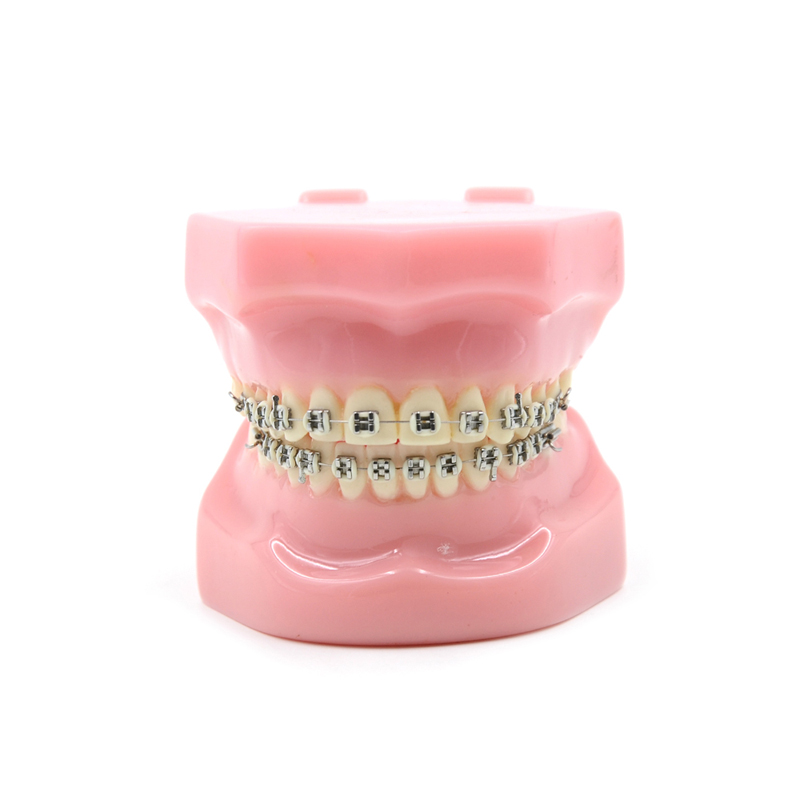 2016 New Arrival Dental Orthodontics Typodont Teeth Model Metal Brace bracket Typodont with Arch Wire Toiletry Kits 2016 dental orthodontics typodont teeth model half metal half ceramic brace typodont with arch wire