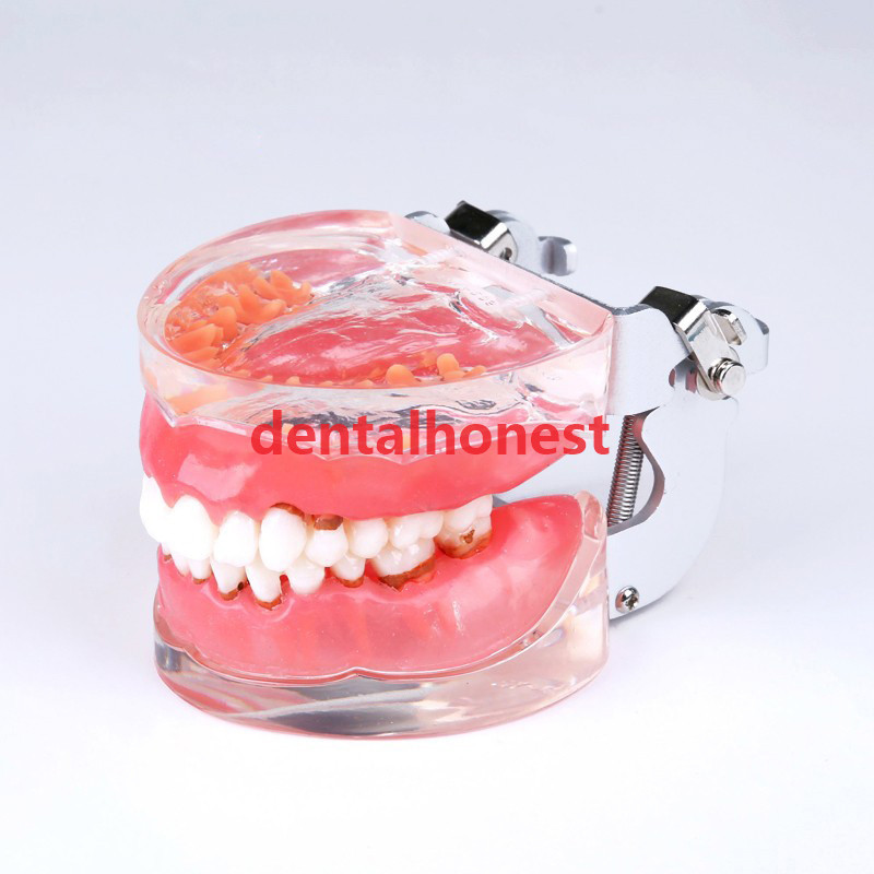 2019 New Dental Typodont Teeth Model Adult Pathological Periodontal Disease 4017# Tools