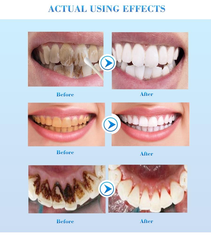 牙齿美白_07