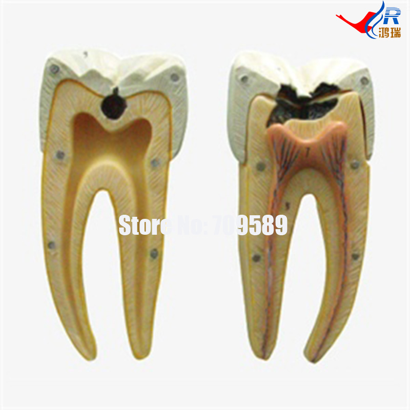 Dental Caries Model, Dental Care Model dental caries decomposition model dental pathologic dental caries model doctor patient communication demonstration