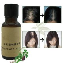 Andrea Hot Fast Hair Growth Pilatory Essence Human Hair Oil