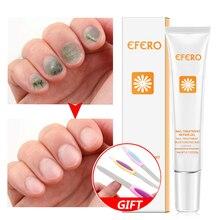 Nail Care Tools Repair Cream Anti Fungus Skin Remedy Toe Cuticle Remove Onychomycosis
