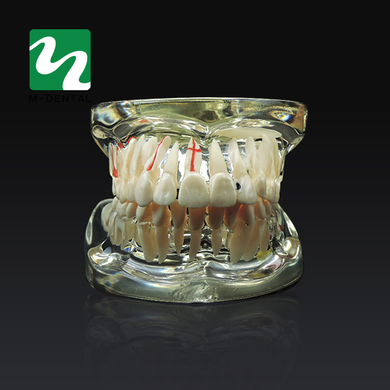 Dental Study Tooth Model Adult Pathological& Disease Teaching Teeth Model Removable For Free Shipping 1 pcs dental standard teeth model teach study