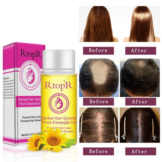 RtopR el crecimiento de cabello nuevo aceite esencial 20 ml de rápido  crecimiento del cabello más 43a54634d97c
