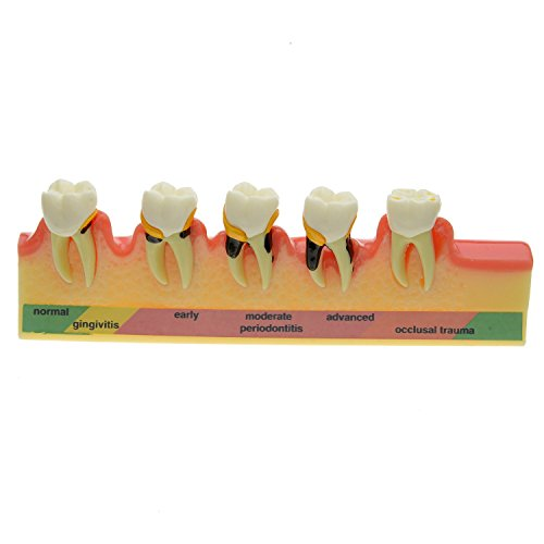 High Quality 2016 New Dental Periodontal Disease Assort Tooth Typodont Model Free Shipping effect of dental implant abutment connections on periodontal tissues