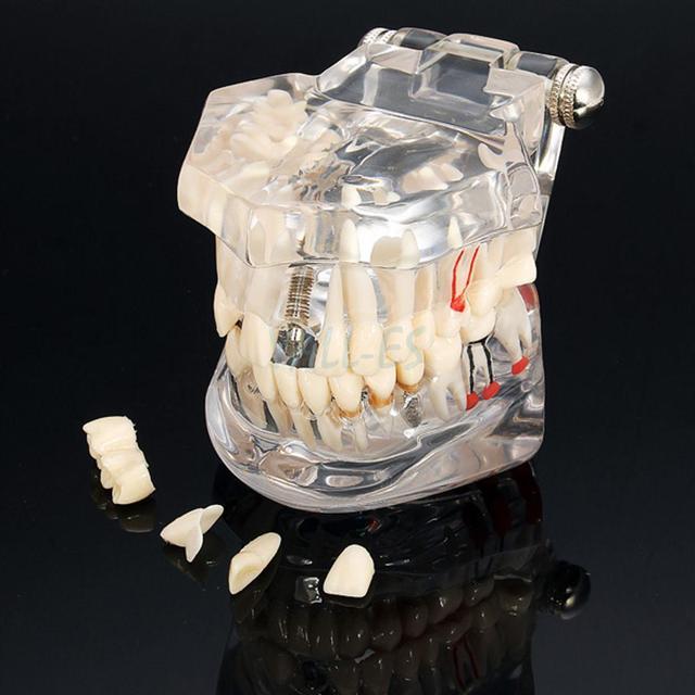 Enfermedad de Implante Dental Modelo de Los Dientes de Restauración y Puente de Dientes Ideal Médico Nuevo