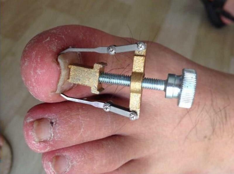 Nasty ingrown nail correction tool..............WARNING - Page 1 ...