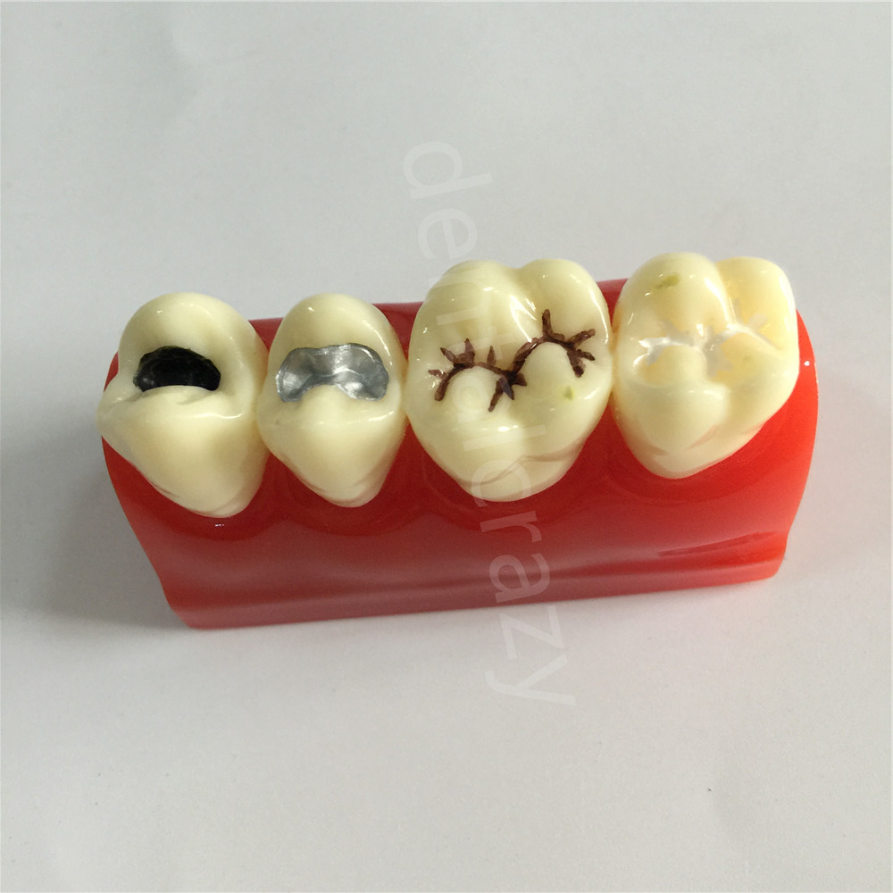 US $26 09 10% OFF|Dental Study Model for Pit and Fissure Sealing Treatment  Teeth Model 2018-in Teeth Whitening from Beauty & Health on Aliexpress com
