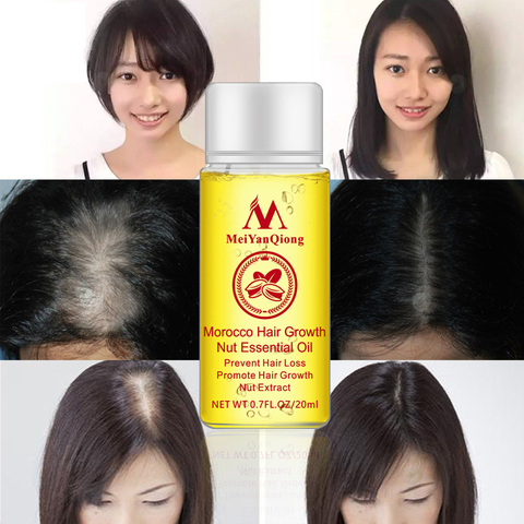 MeiYanQiong Fast Powerful Hair Growth Essence Hair Loss Products Essential Oil Liquid Treatment Hair Loss Care Products TSLM2 Lahore