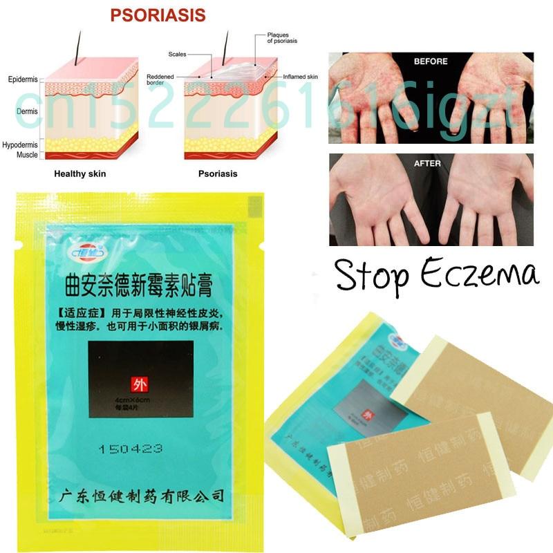 4 Patches/Bag Skin Psoriasis Plaster Dermatitis Eczematoid Eczema Plaster Treatment Psoriasis Cream Health Care