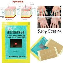 Emplastro para psoríase e eczema, 4 pacotes/saco de pele, dermatites, eczematoide, gesso, tratamento, creme para psoríase, cuidados de saúde
