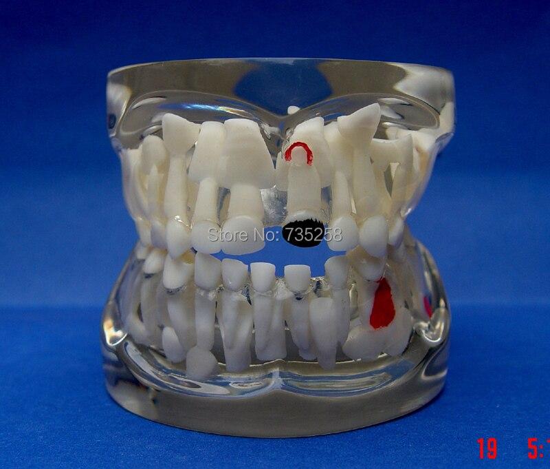 Pathological Model Senior Children's Teeth,Children's Teeth Disease Model comprehensive dental pathology model pathological model new mathematical model of teeth