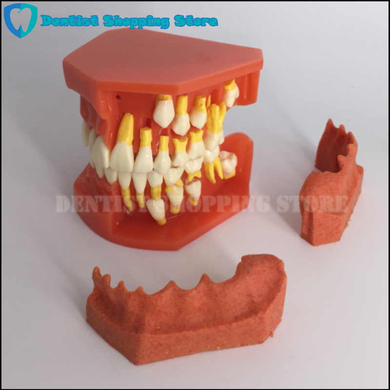 Modèle d'anatomie anatomique des dents modèle dentaire enfants