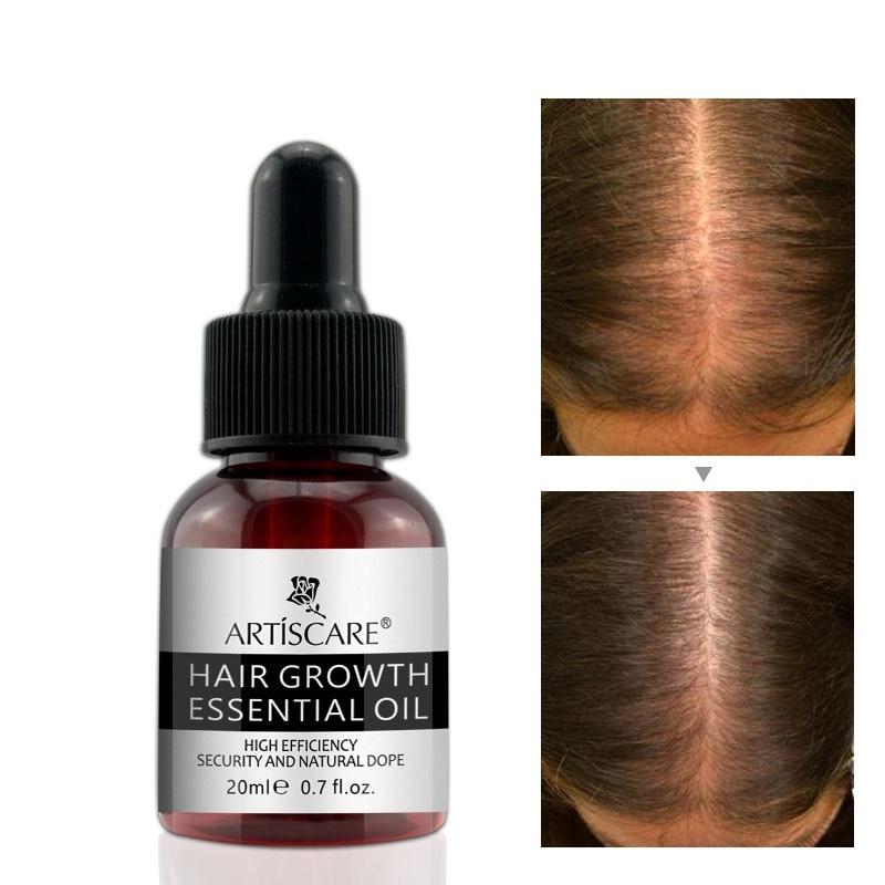 Haar Wachstum Ätherisches Öl Haarpflege Reparatur Behandlung Dichten Für Frauen Männer Nachwachsen Der Haare Serum Weniger Teuer