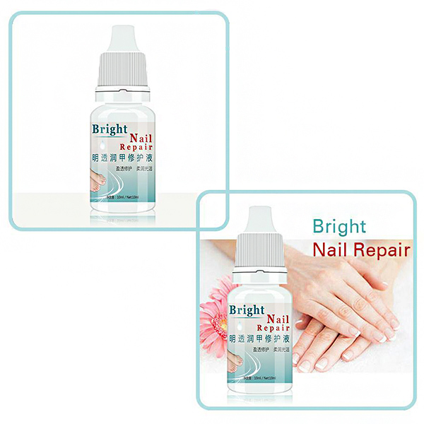 US $3.19 20% OFF|2Pcs Effective 10 ml Anti Fungal Treatment Extra Strength  Toenail Fungus Athletes Foot Fungi Nail Cream Nail Brighten Liquid-in Nail  ...