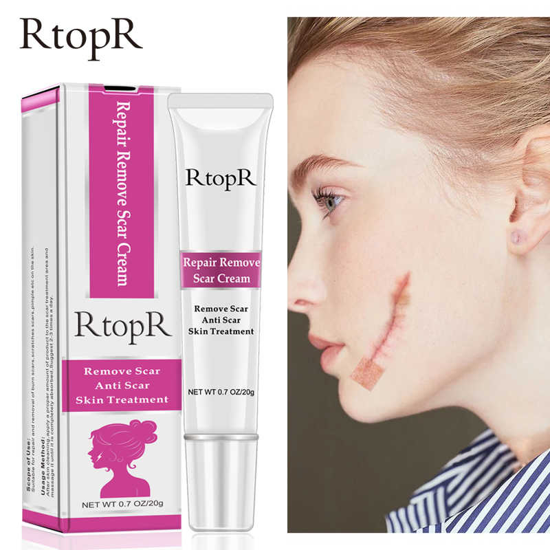 RtopR acné cicatrice vergetures dissolvant crème réparation de la peau crème pour le visage taches d'acné traitement de l'acné point noir crème blanchissante soins de la peau