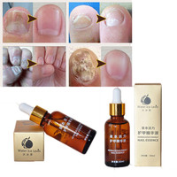 Hot Sale Nail Treatment 30ml Cuticle Oil Nourishment Oil Essence Nail and Foot Whitening Toe Nail Fungus Removal Drop Shipping Health & Beauty