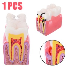 1pc Dental Anatomy Education Teeth Model 6 Times Caries Comparation Study Models For Dentist Studying and Researching 1pcs caries teeth model 6 times caries comparation study models tooth decay model denture teeth model for dental study teaching