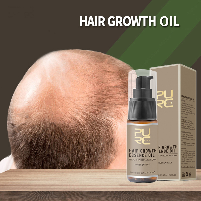 Hair Care & Styling Professional Hair Growth Spray Hair Regrowth Products Anti Hair Loss Repair Treatment Thinning Hair/receding Hairline/bald Spots