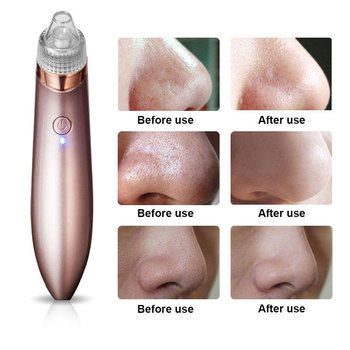 1 Set Blackhead Remover Skin Care Pore Vacuum Acne Pimple Removal Suction Tool Facial Dermabrasion Face Clean Beauty Machine вакуумный аппарат для чистки лица