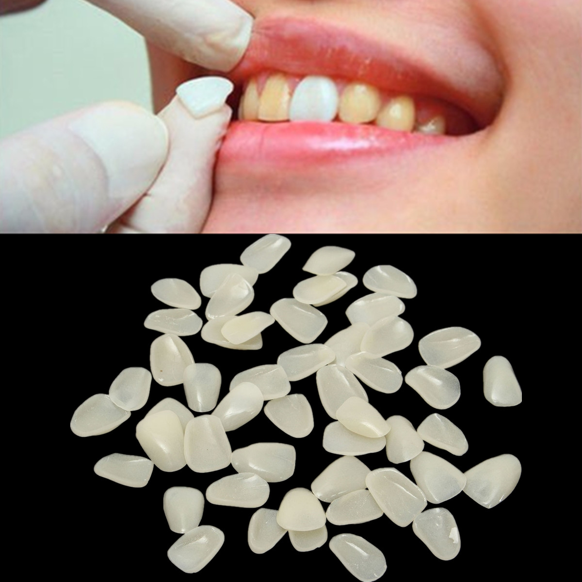 3x50pcs Dental Ultra Thin Whitening Porcelain Teeth Medical Veneers Resin Teeth Anterior Temporary Crown For Dental Care
