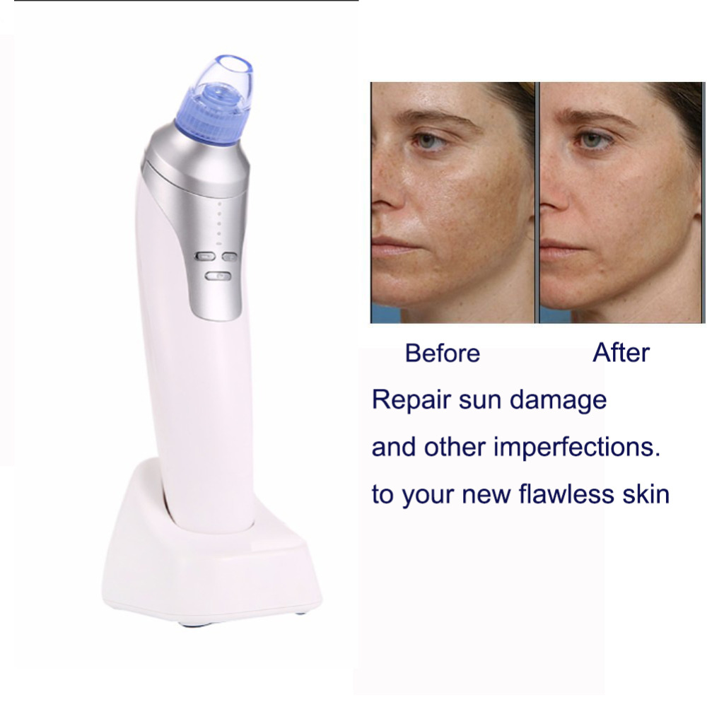 Blackhead Vacuum Cleaner Suction Diamond Dermabrasion Removal Scar Acne Pore Peeling Face Clean Facial Skin Care Beauty Machine kiki diamond dermabrasion removal scar acne pore peeling face clean facial skin rechargeable blackhead vacuum cleaner suction
