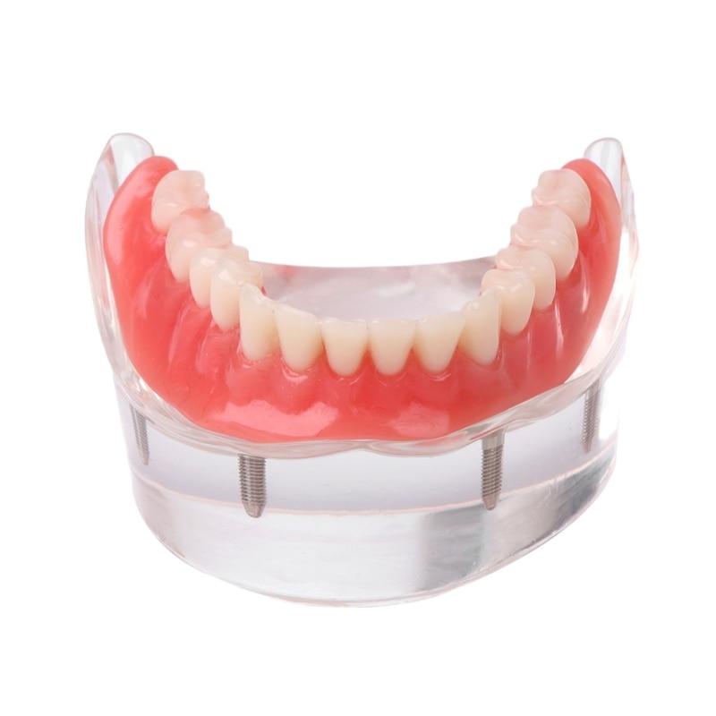 1Pc Dental Teeth Study Model Overdenture Inferior 4 Implant Demo Models Dec29 #Y207E# Hot Sale pro teeth whitening oral irrigator electric teeth cleaning machine irrigador dental water flosser teeth care tools m2